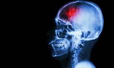 Stroke rehab tech firm BrainQ has received a major funding boost.