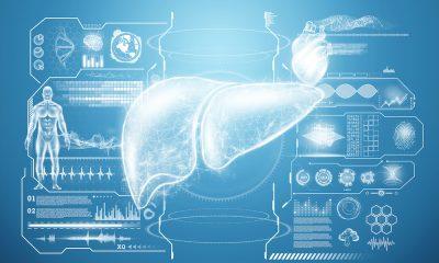 Liver patient